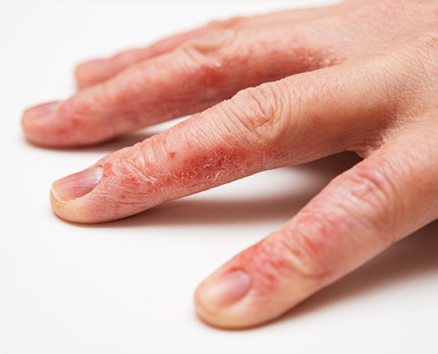 eczema - hand dermatitis treatment