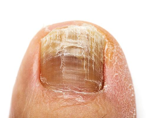 nail problems dermatologist wellington