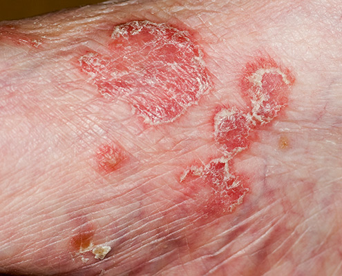 psoriasis treatment wellington
