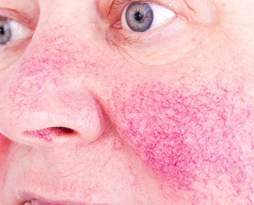 rosacea treatment - redness treatment